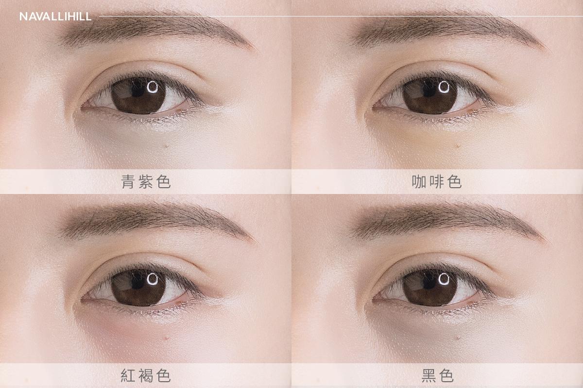 黑眼圈常見的四大種類